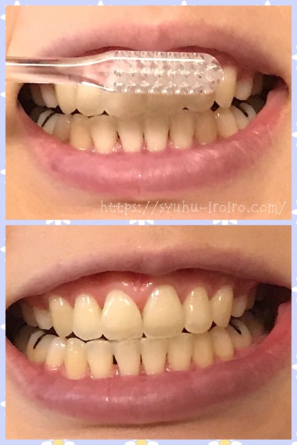 美白歯磨き使用前